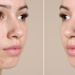 AcnéXero, la app que acaba con el acné juvenil desde el móvil
