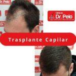 El injerto capilar en Sevilla gana popularidad gracias a las Clínicas Dr. Pelo